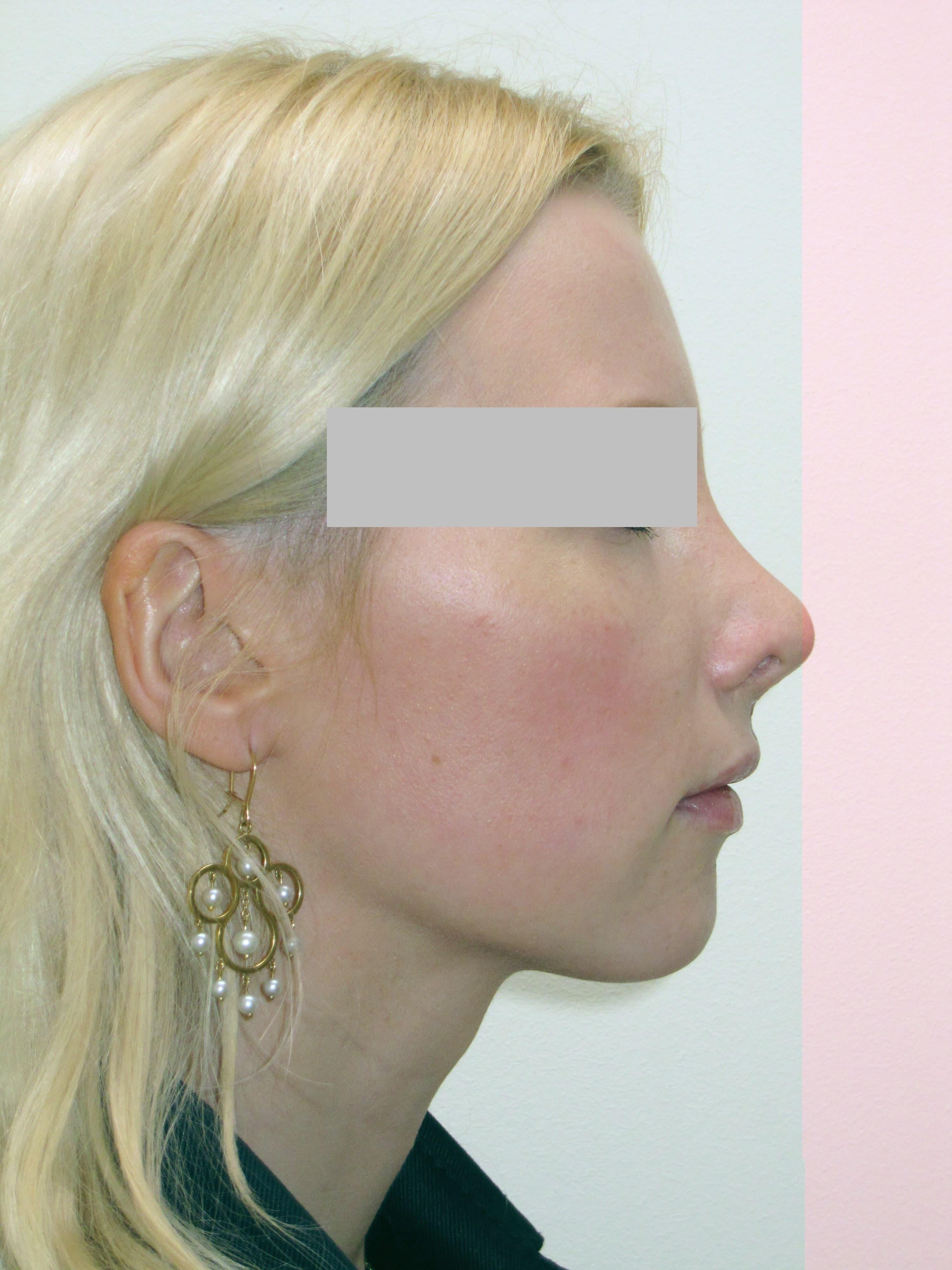 Vorher höckernase nachher op Nasenkorrektur Vorher