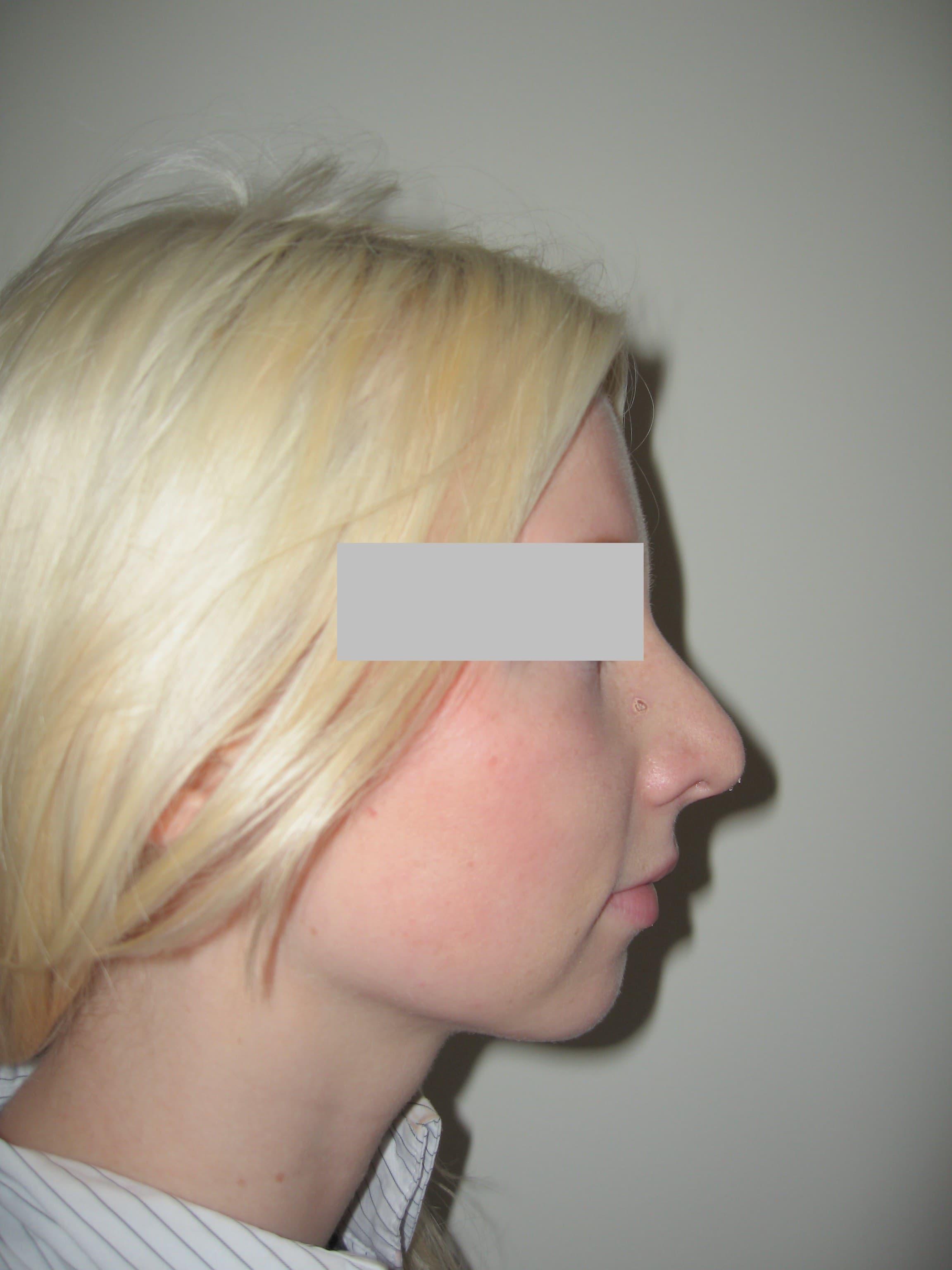 Frauen nachher bilder nasenkorrektur vorher Nasenkorrektur Vorher